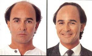 Gradual Hair Replacement